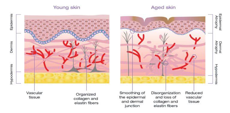huidveroudering1
