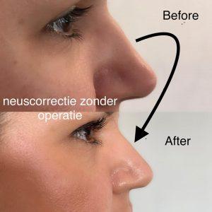 neuscorrectie-1